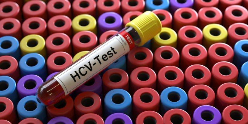 gettyimages hcv test
